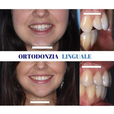 caso clinico 6 ortodonzia linguale